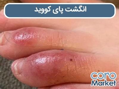 انگشت پای کووید ؛ علائم پوستی کرونا